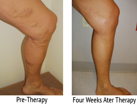 Varicose Vein Treatment Results Comparison